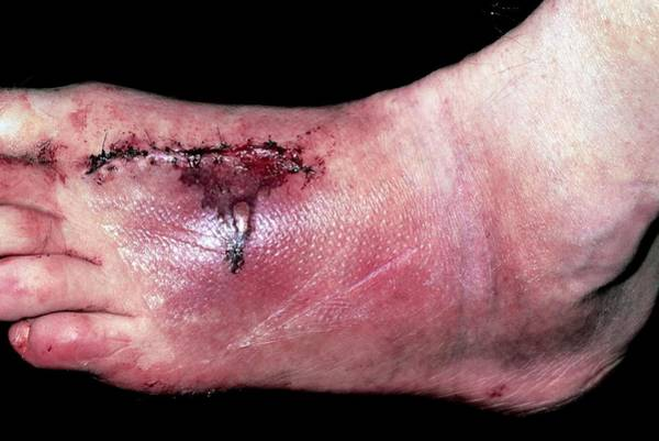 Crush Wall Art - Photograph - Suture Scar On Crushed Foot After Road Accident by Dr P. Marazzi/science Photo Library