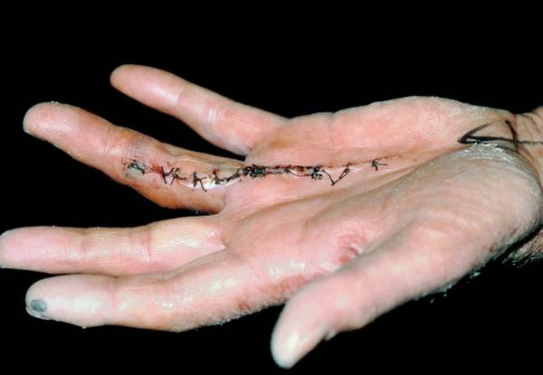 Wall Art - Photograph - Sutured Hand: Corrected Dupuytren's Contracture by Dr P. Marazzi/science Photo Library