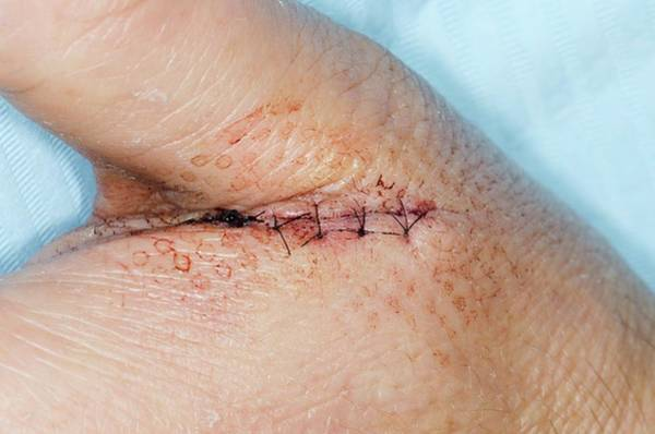 Wall Art - Photograph - Sutured Skin Injury To The Hand by Dr P. Marazzi/science Photo Library
