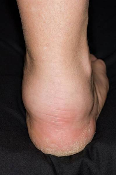 Inflammation Wall Art - Photograph - Swollen Ankle From Vasculitis by Dr P. Marazzi/science Photo Library