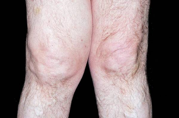 Inflammation Wall Art - Photograph - Swollen Knee In Osteoarthritis by Dr P. Marazzi/science Photo Library