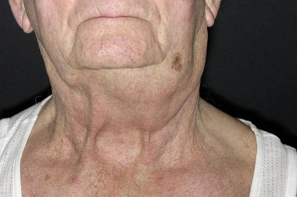 Wall Art - Photograph - Swollen Lymph Node Due To Cancer by Dr P. Marazzi/science Photo Library