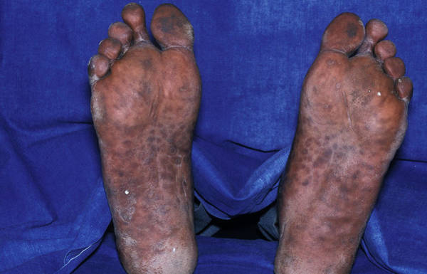Scaling Photograph - Syphilis Rash by Dr M.a. Ansary/science Photo Library