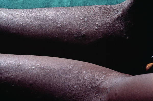 Wall Art - Photograph - Syphilis Rash In An Aids Patient by Dr M.a. Ansary/science Photo Library