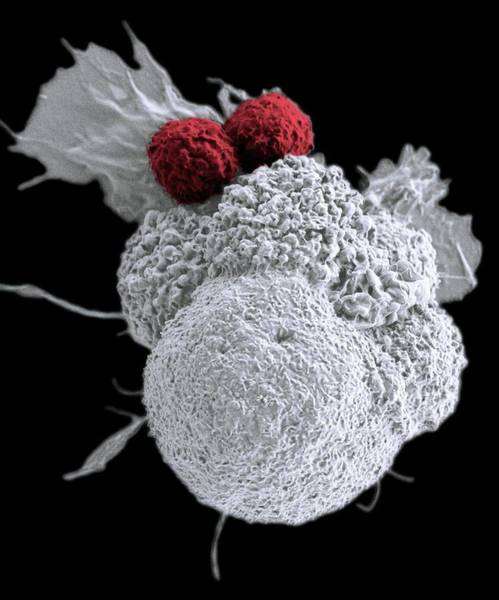 Wall Art - Photograph - T Cells Attacking Cancer Cell by Duncan Comprehensive Cancer Center At Baylor College Of Medicine/national Cancer Institute/science Photo Library