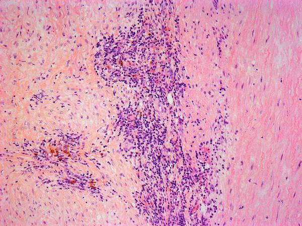 Artery Wall Art - Photograph - Takayasu's Arteritis by Steve Gschmeissner