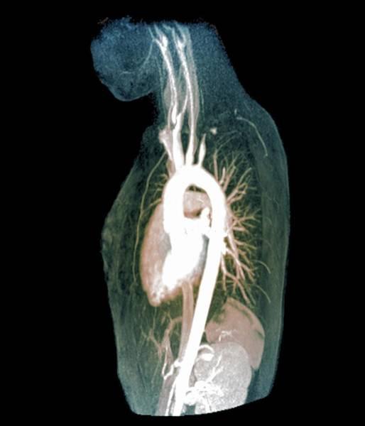 Radiological Photograph - Takayasu's Arteritis by Zephyr