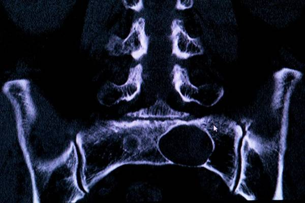 Resonance Wall Art - Photograph - Tarlov Spinal Cyst by Dr P. Marazzi/science Photo Library