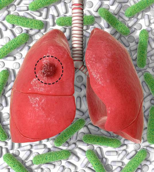 Lung Photograph - Tb Drug Resistance And Surgery by Animated Healthcare Ltd