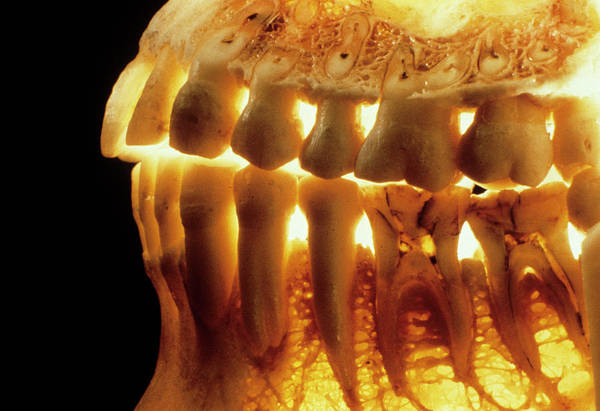 Dentistry Wall Art - Photograph - Teeth In The Jaws by Alain Pol, Ism/science Photo Library
