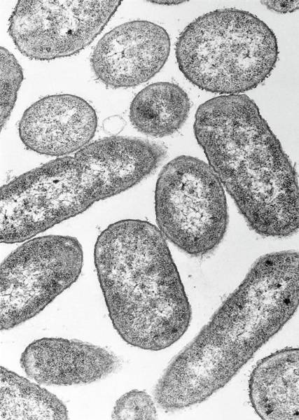Escherichia Coli Wall Art - Photograph - Tem Of E. Coli Bacteria by A. Dowsett, Public Health England/science Photo Library
