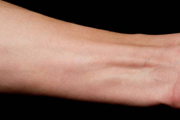 Wall Art - Photograph - Tendonitis Of The Wrist by Dr P. Marazzi/science Photo Library