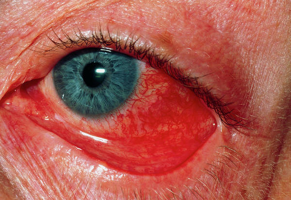 Eye Ball Photograph - Tennis Ball Injury To Eye by Dr P. Marazzi/science Photo Library