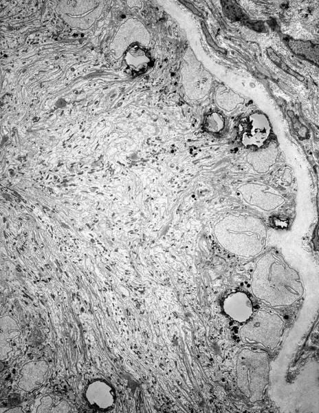 Testis Tissue In Infertility Art Print