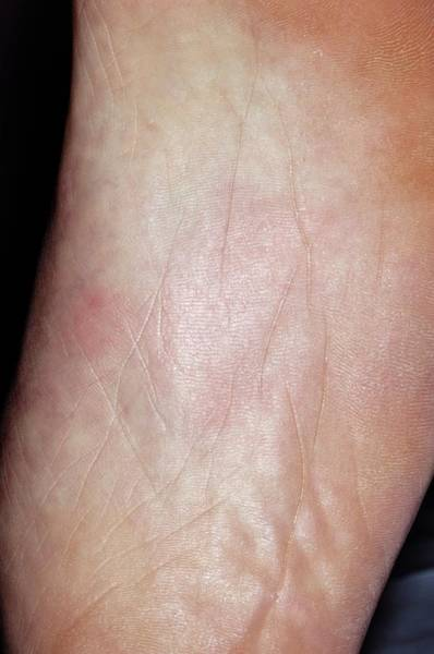 Wall Art - Photograph - Thermal Urticaria On The Foot by Dr P. Marazzi/science Photo Library
