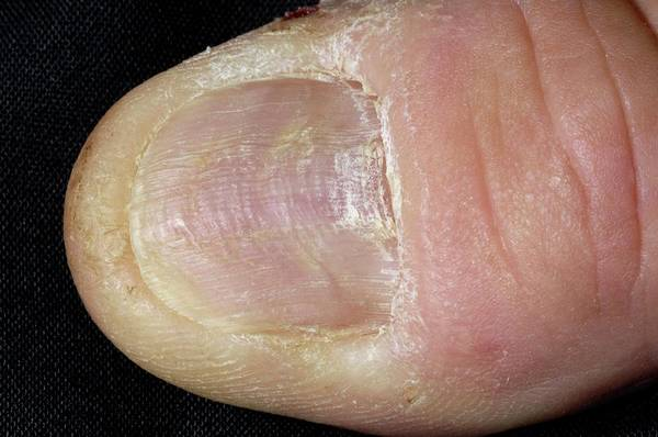 Lichens Photograph - Thumbnail With Lichen Planus Disease by Dr P. Marazzi/science Photo Library