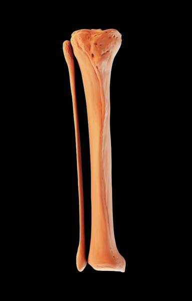 Shin Photograph - Tibia And Fibula by Science Artwork