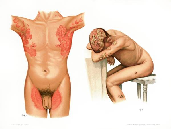 Wall Art - Photograph - Tinea Cruris And Capitis by Us National Library Of Medicine/science Photo Library