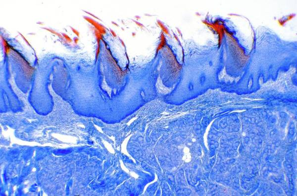 Wall Art - Photograph - Tongue Papillae by Cnri/science Photo Library