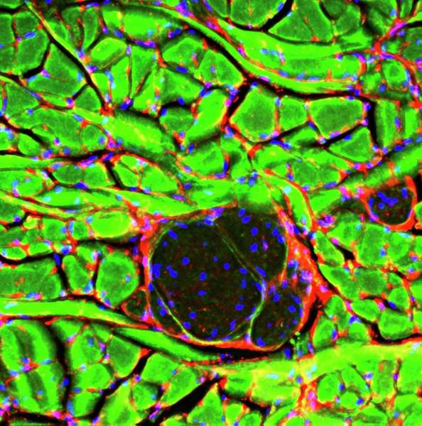 Nerve Cell Photograph - Tongue Tissue by R. Bick, B. Poindexter, Ut Medical School