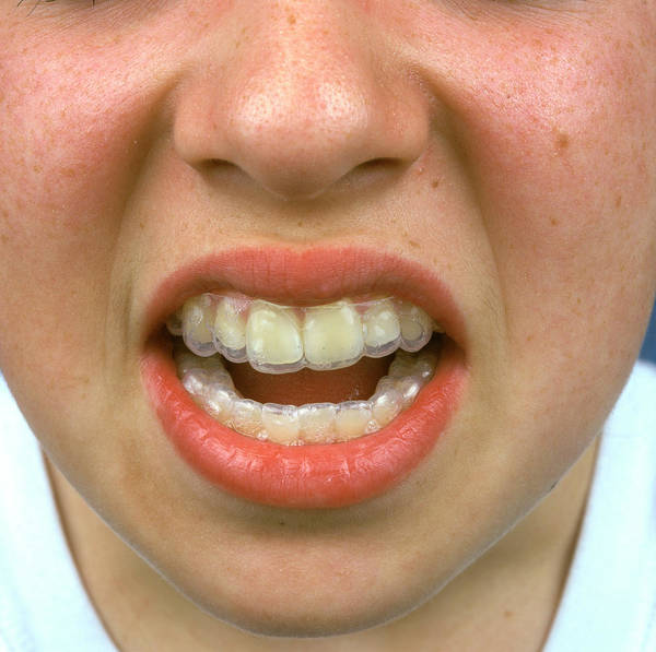 Aesthetic Photograph - Tooth Brace by Alex Bartel/science Photo Library