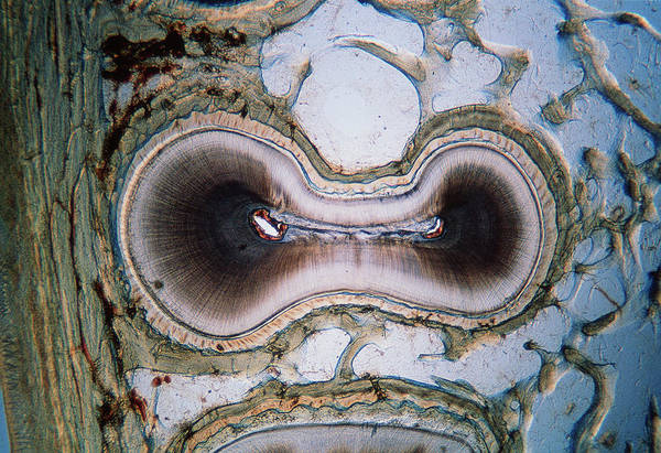 Oral Wall Art - Photograph - Tooth Root by Innerspace Imaging/science Photo Library