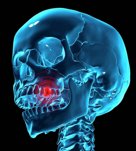 Dentistry Wall Art - Photograph - Toothache by Andrzej Wojcicki/science Photo Library