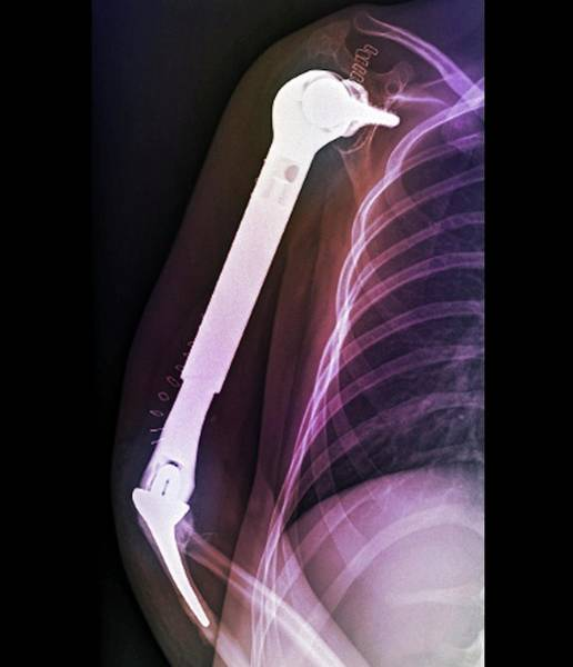 Upper Body Photograph - Total Upper Arm Bone Replacement by Zephyr