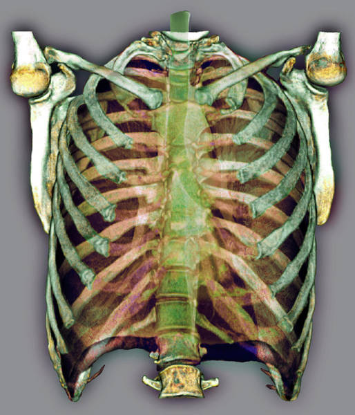 False Ribs Wall Art - Photograph - Trachea And Rib Cage by Zephyr/science Photo Library