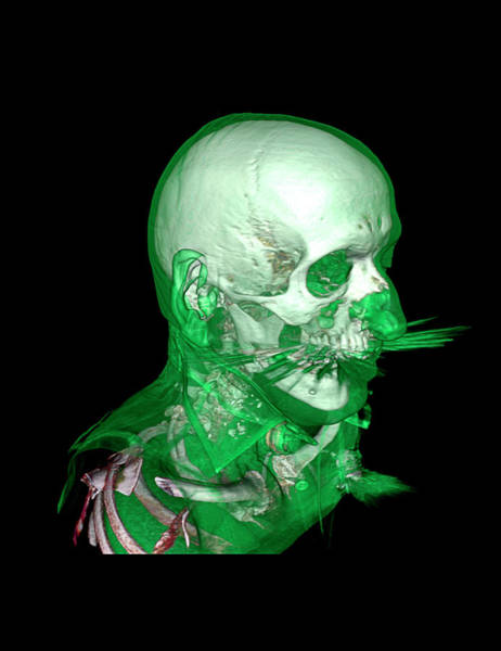 Multi-dimensional Wall Art - Photograph - Tracheostomy by Antoine Rosset/science Photo Library