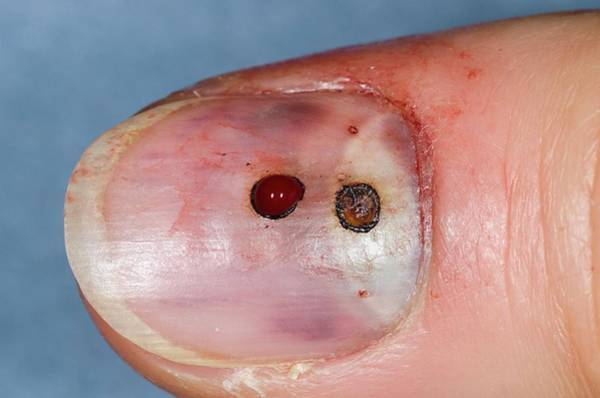 Bleeding Photograph - Treated Bruise Under Fingernail by Dr P. Marazzi/science Photo Library