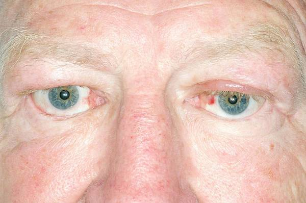 Wall Art - Photograph - Treated Graves' Ophthalmopathy by Dr P. Marazzi/science Photo Library
