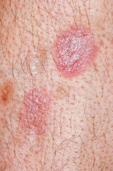 Scaling Photograph - Treated Psoriasis On The Leg by Dr P. Marazzi/science Photo Library