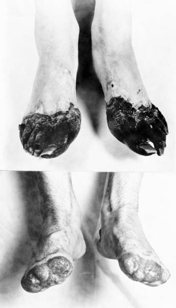 Trench Wall Art - Photograph - Trench Foot by Otis Historical Archives, National Museum Of Health And Medicine