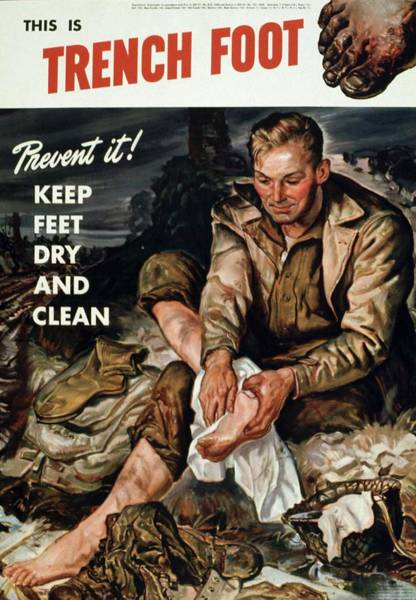 Trench Wall Art - Photograph - Trench Foot Poster by Us National Archives/science Photo Library