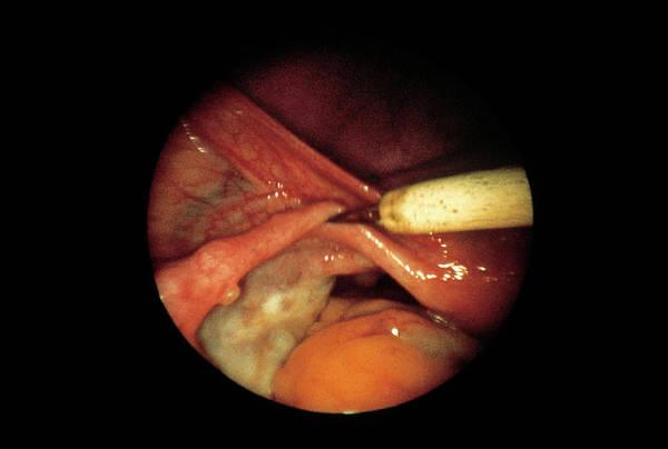 Patient Photograph - Tubal Sterilisation by Cnri/science Photo Library