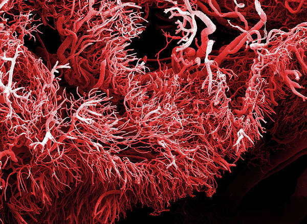 Photograph - Tumour Blood Vessels by Clouds Hill Imaging Ltd/science Photo Library