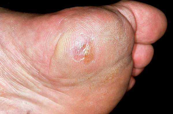Heal Wall Art - Photograph - Ulcer In Claw Foot (pes Cavus) by Dr P. Marazzi/science Photo Library