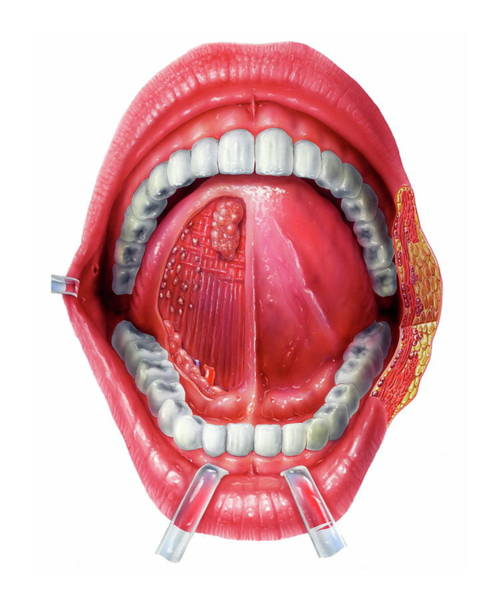 Lips Photograph - Underside Of The Tongue by Bo Veisland/science Photo Library