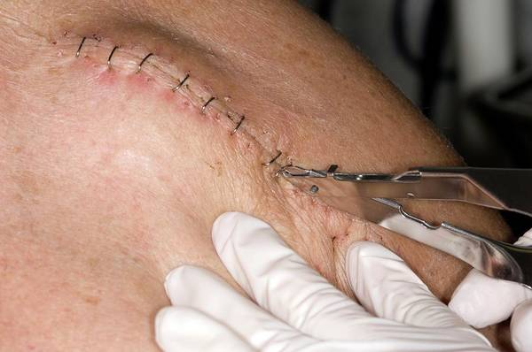 Patient Photograph - Unstapling Wound On Arm (image 7 Of 7) by Dr P. Marazzi/science Photo Library