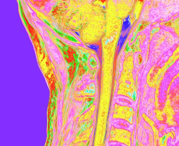 Spinal Cord Photograph - Upper Spinal Cord And Vertebrae by K H Fung/science Photo Library