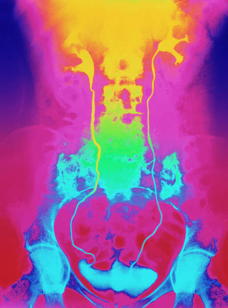 Wall Art - Photograph - Urinary Tract X-ray by Science Photo Library