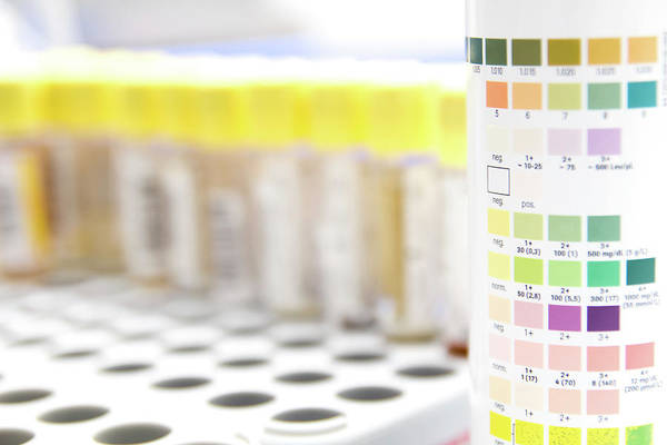 Specific Gravity Wall Art - Photograph - Urine Analysis Colour Chart by Daniela Beckmann / Science Photo Library