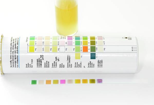 Diagnose Photograph - Urine Dipstick by Science Photo Library