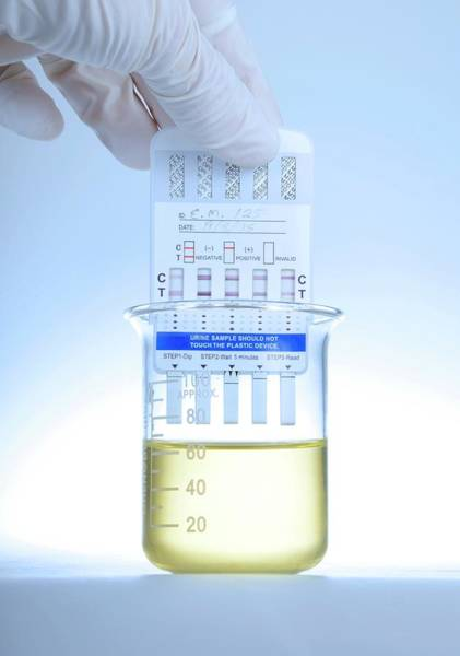 Urine Drug Test Art Print