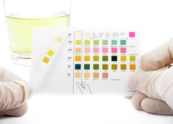 Reference Wall Art - Photograph - Urine Home Test Kit by Cordelia Molloy