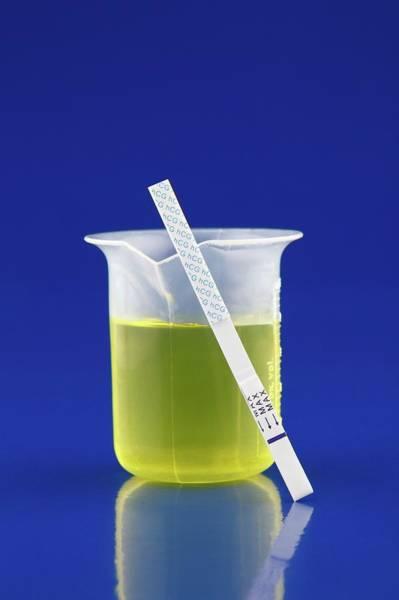 Wall Art - Photograph - Urine Test by Wladimir Bulgar/science Photo Library