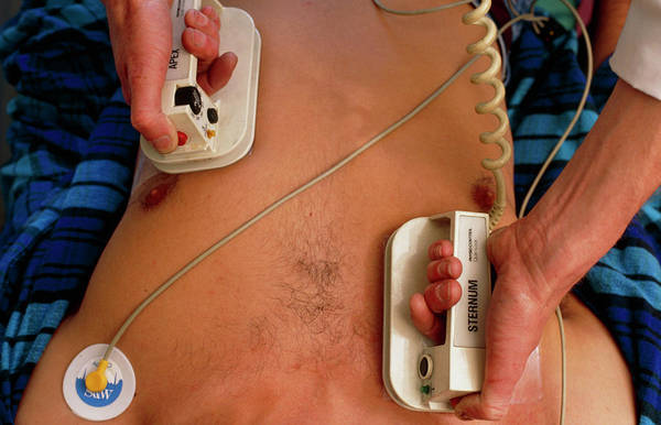 Heart Attack Wall Art - Photograph - Use Of Defibrillator On Heart Attack Victim by Adam Hart-davis/science Photo Library