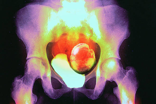 Wall Art - Photograph - Uterine Fibroid by Gjlp/cnri/science Photo Library