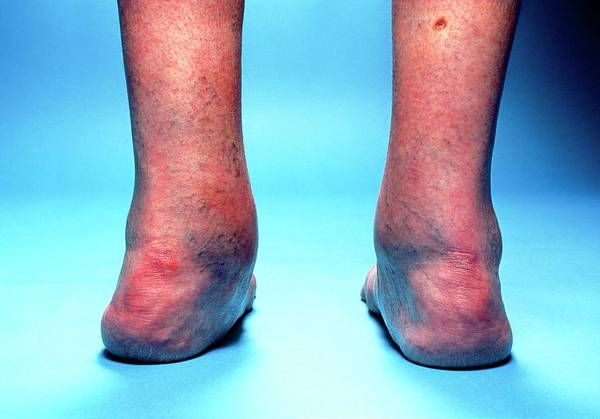 Ar Photograph - Valgus Heels Caused By Rheumatoid Arthritis by Mike Devlin/science Photo Library